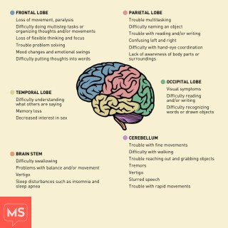 Do Mris Paint An Accurate Picture Multiplesclerosis Net Small